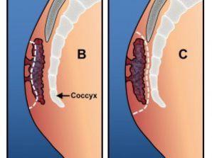 کیست مویی یا سینوس پیلونیدال در مردان